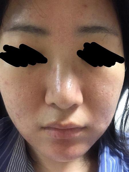 ニキビ治療・ニキビ跡治療 (サイトンヘイロー(全顔)) 施術前