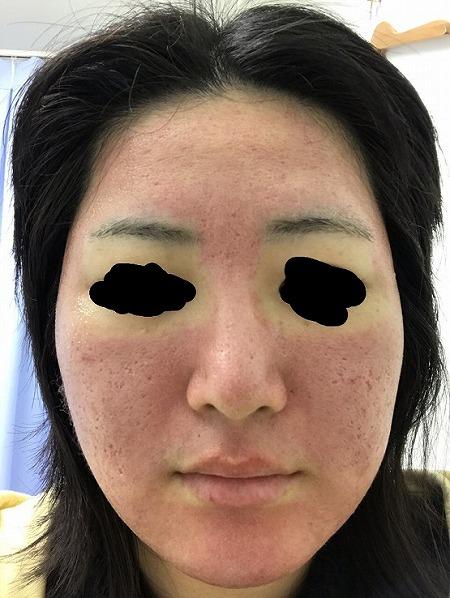 ニキビ治療・ニキビ跡治療 (サイトンヘイロー(全顔)) 施術後