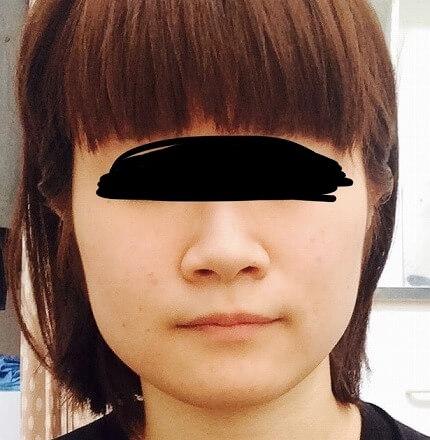 鼻の整形 (小鼻縮小内側法) 施術前