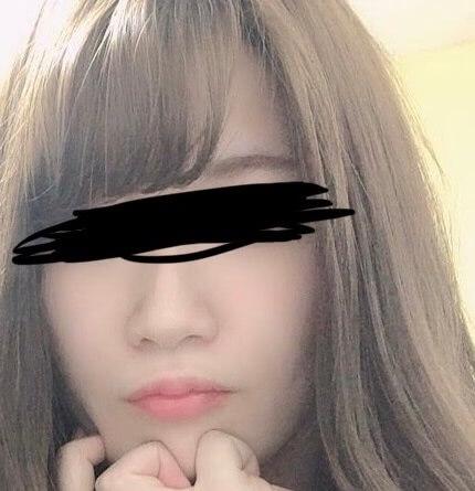 鼻の整形 (小鼻縮小内側法) 施術後
